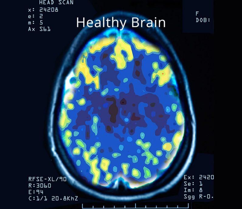 NeuroStar TMS Treatment